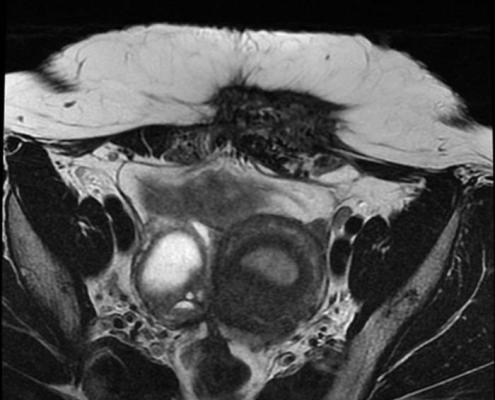 Endometriosis pared abdominal